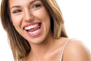 Strahlend schöne Zähne dank ästhetischer Zahnheilkunde | Zahnarzt Roßtal