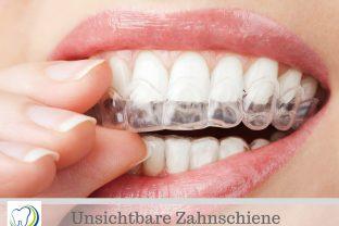 Aligner - Unsichtbare Zahnkorrektur | Zahnarztpraxis Treuheit