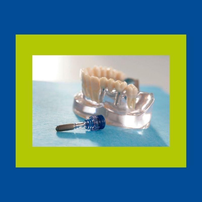 Zahnimplantate schließen nicht nur Zahnlücken: Sie geben ein großes Stück Lebensqualität zurück. Erfahren Sie hier mehr über unsere Versorgung.